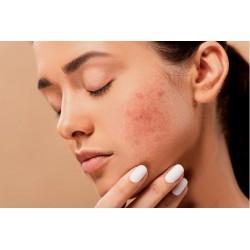 Crème pour peau acnéique, boutons,et points noirs dus à l'excès de sébum et aux cellules mortes.