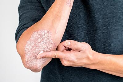 traitement-remedes-psoriasis