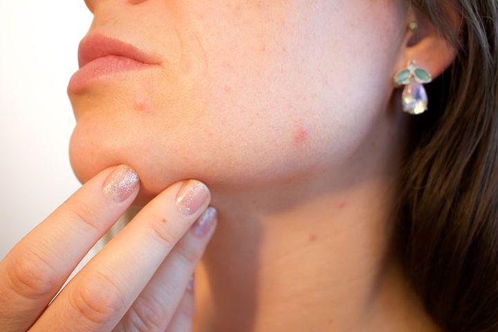 Quels sont nos solutions et conseils pour soigner l'acné juvénile et l'acné hormonal ?